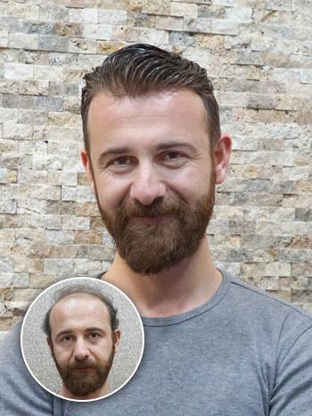 Quantum, Erkek Protez Saç,